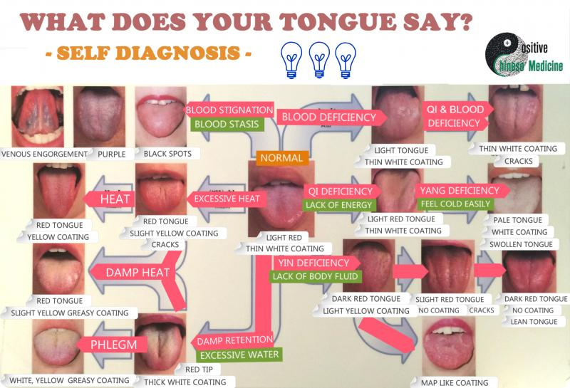 What Your Tongue Says About Your Health Apps Directories